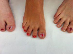 Toe nails with logo